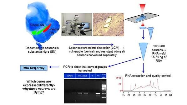 Parkinsons pathology.jpg
