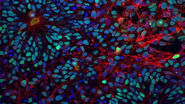 Stem Cells.png